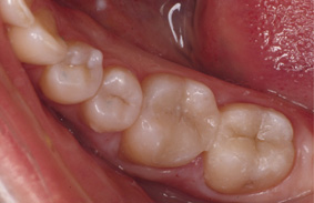 cerec-after
